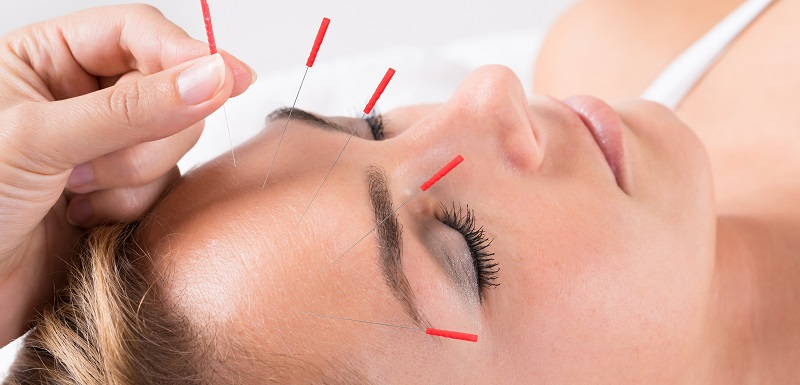 migraine acupuncture